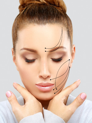 Facial Thread Lift
